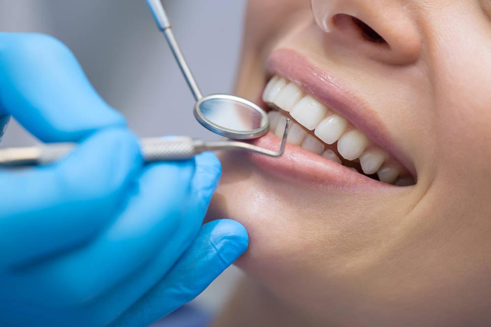 La estética dental cada vez más importante