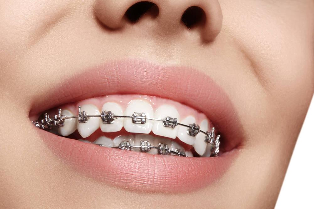 No escondas tu ortodoncia, los brackets están de moda