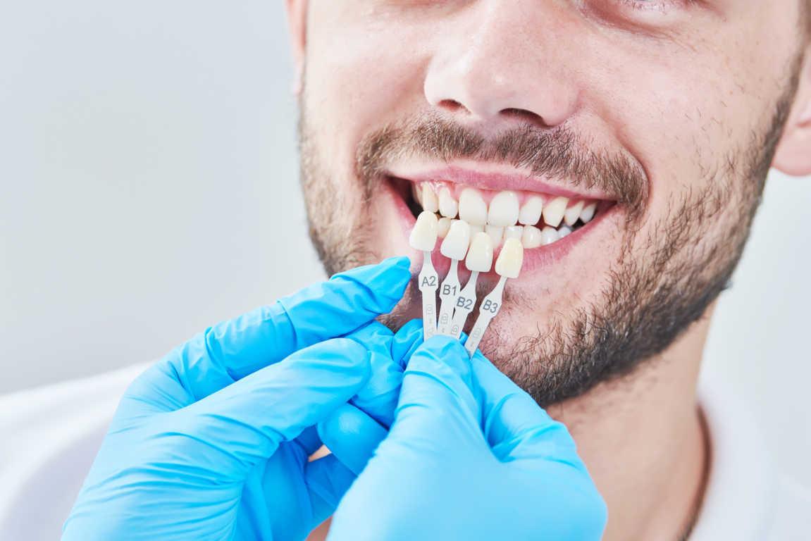 Los nuevos tratamientos en estética dental