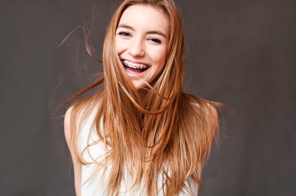 Mi vida con ortodoncia de brackets