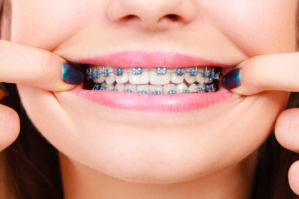 ¿Te vas a poner ortodoncia? Estos con los Brackets para elegir